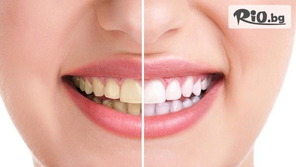 Професионално избелване на зъби #1
