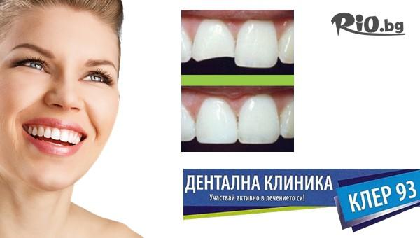 Възстановяване на зъб #1
