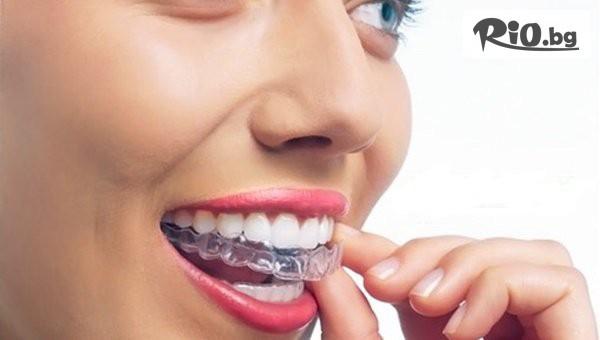 Ортодонтски преглед #1