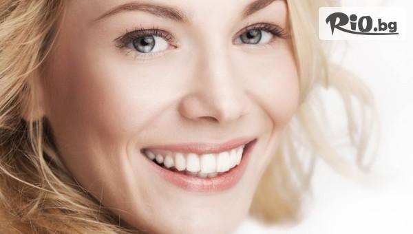 Естетическо възстановяване на зъб #1