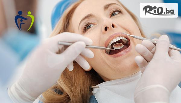 Почистване на зъбен камък + полиране #1