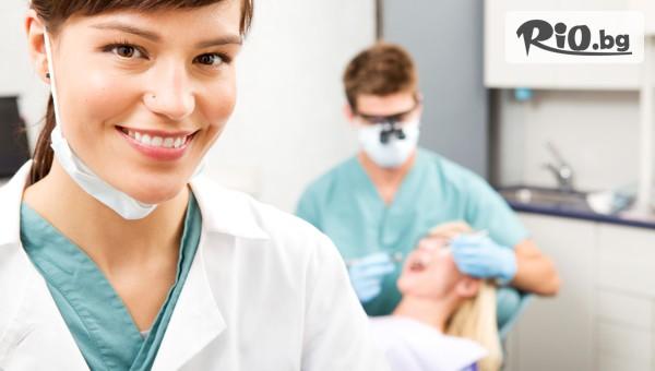 Домашно избелване на зъби #1