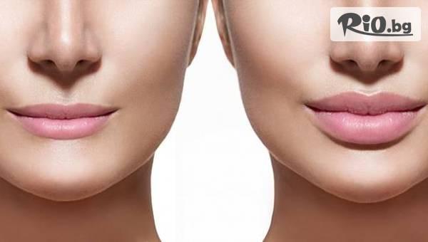 Уголемяване на устни #1