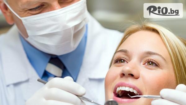 Почистване на зъбен камък с ултразвук #1