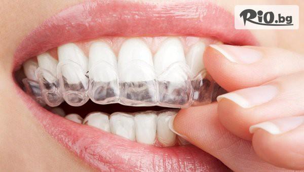 Ортодонтски преглед и лечебен план #1