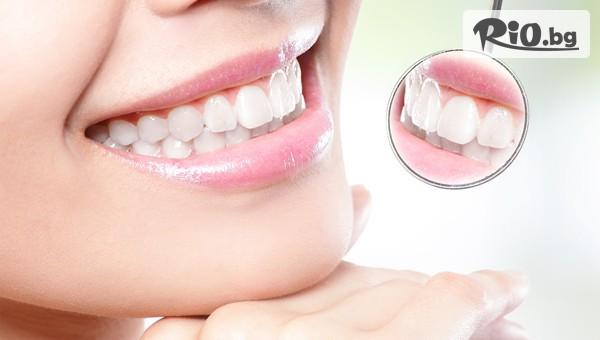 Почистване на зъбен камъ #1