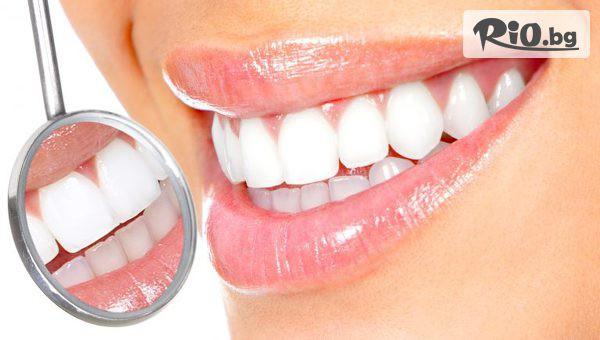Eстетично възстановяване на преден зъб #1