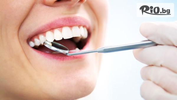 Бондинг на зъб #1