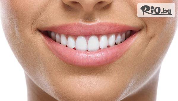 Бондинг на 1 зъб с фотополимерна фасета #1
