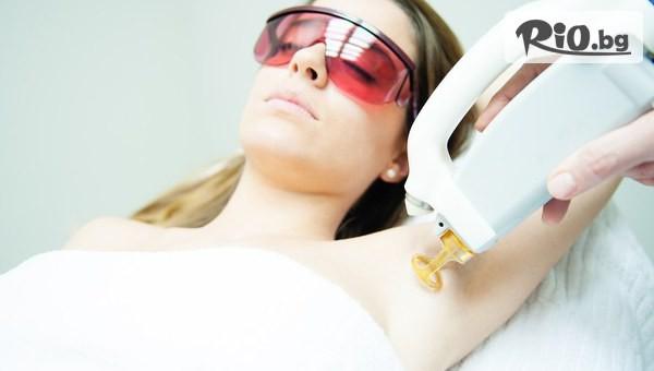 Лазерна епилация за жени #1
