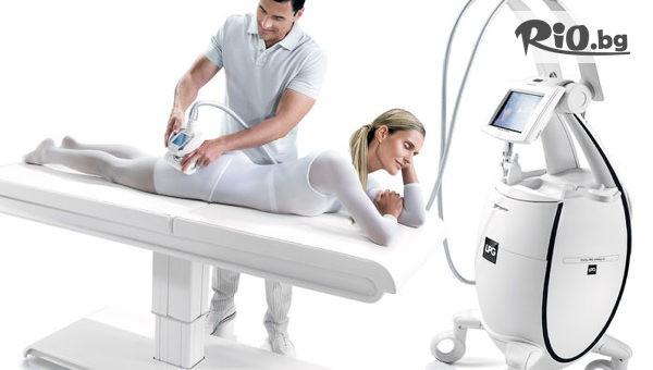 LPG процедура на крака или на цяло тяло #1