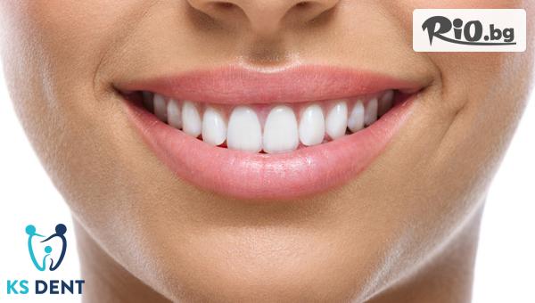 Изграждане на счупен зъб + коронка #1
