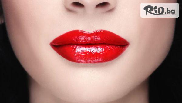 Безиглено уголемяване на устни #1